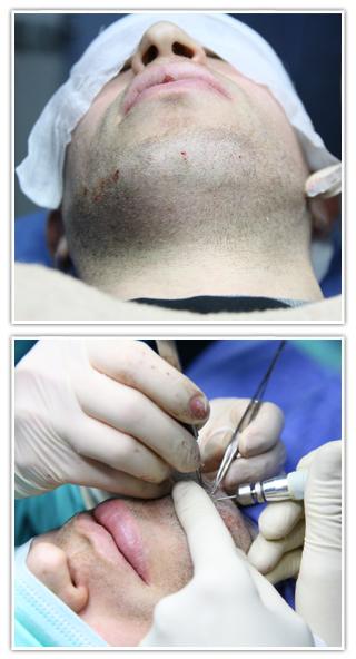 BHT - Hair Transplant